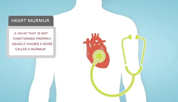 What is a murmur?
