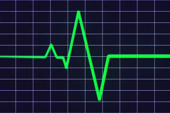 Low Heart Rate – Bradycardia